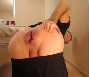 Mr BigHOLE Huge Gay Hole
