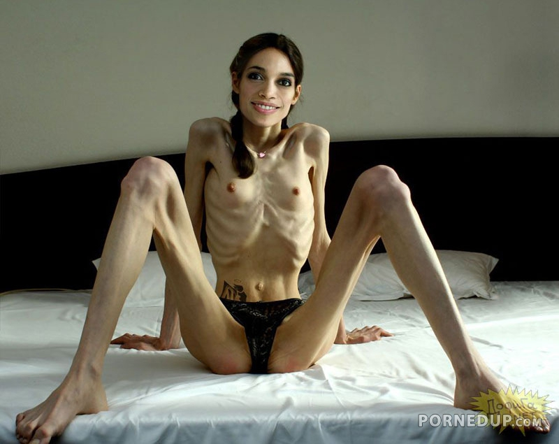 Skinny girls anorexic nude free pics — pic 3