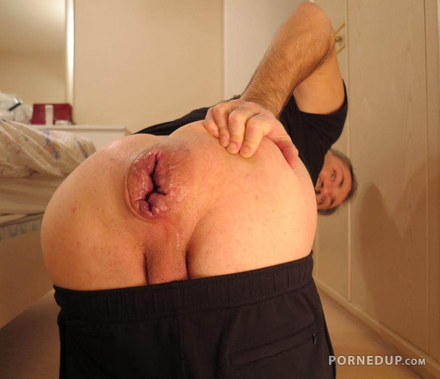Gay huge hole