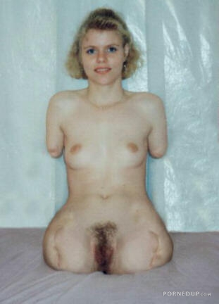pics of girls mising limbs naked
