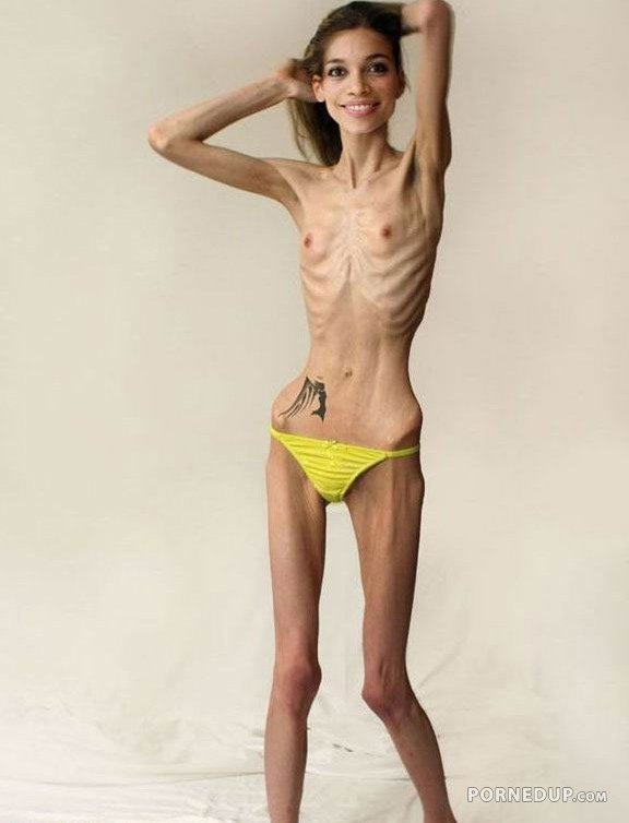 Anorexic Nubiles 60