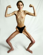 anorexic topless girl